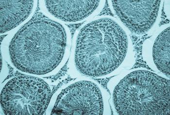 microscope cells - QUIÉN ODIA A QUIÉN: UNA CLAVE PARA COMPRENDER QUÉ ES EL SISTEMA